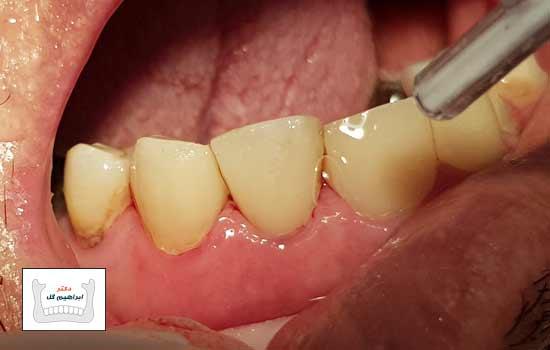 استعادة الأسنان المرکبة