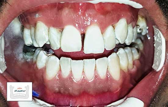 Laser tooth bleaching
