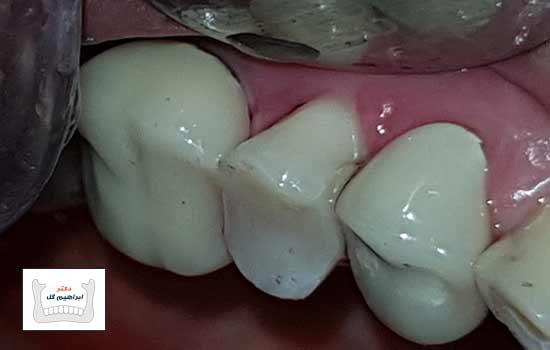 عکس بعد از ترمیم دندان