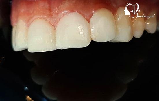 عکس های قبل و بعد لمینت دندان بیمار جناب کریمی