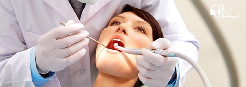 لمینت دندان ،قیمت لمینت دندان چیست و انواع لمینت کامپوزیت و سرامیک؟  - لمینت کامپوزیتی