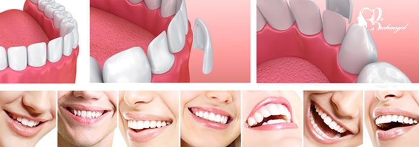 لمینت دندان ،قیمت لمینت دندان چیست و انواع لمینت کامپوزیت و سرامیک؟  - لمینت سرامیکی