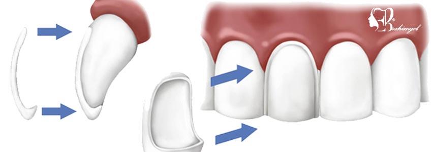 لمینت دندان ،قیمت لمینت دندان چیست و انواع لمینت کامپوزیت و سرامیک؟  - حساسیت دندان