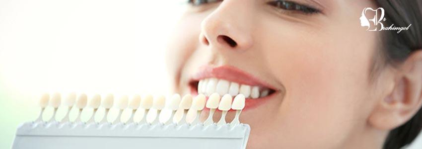 لمینت دندان ،قیمت لمینت دندان چیست و انواع لمینت کامپوزیت و سرامیک؟  - دندان و لمینت