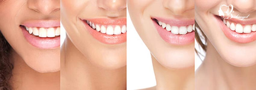 لمینت دندان ،قیمت لمینت دندان چیست و انواع لمینت کامپوزیت و سرامیک؟  - باندینگ