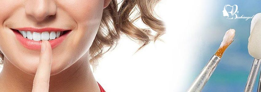 لمینت دندان ،قیمت لمینت دندان چیست و انواع لمینت کامپوزیت و سرامیک؟  - در چه شرایطی لمینت کامپوزیتی مؤثرتر است؟