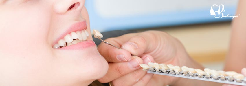 تصفیح الأسنان فی إیران (قشرة السیرامیک)