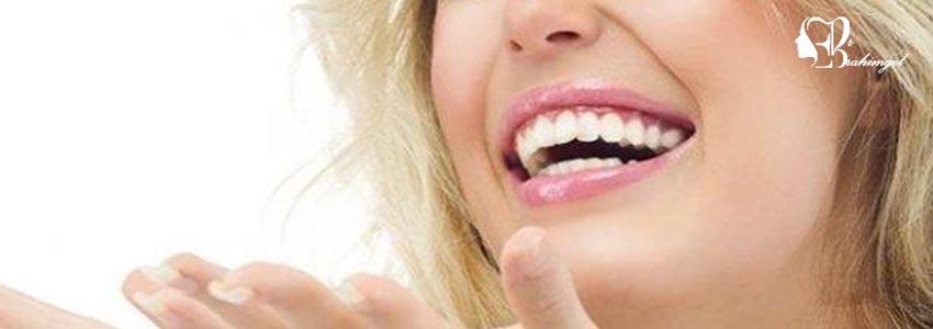 لمینت دندان ،قیمت لمینت دندان چیست و انواع لمینت کامپوزیت و سرامیک؟  -  لمینت پورسلین