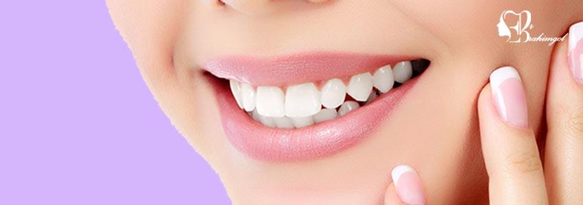 لمینت دندان ،قیمت لمینت دندان چیست و انواع لمینت کامپوزیت و سرامیک؟  - در چه شرایطی استفاده از لمینت سرامیکی بهتر است؟