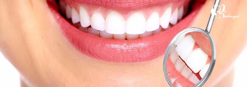 لمینت دندان ،قیمت لمینت دندان چیست و انواع لمینت کامپوزیت و سرامیک؟  - مزیتهای لمینت سرامیکی چیست؟