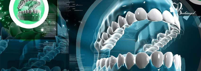 ایمپلنت دندان چیست؟قیمت ایملنت دندان،کاشت ایمپلنت دندان با لیزر،انواع ایمپلنت -