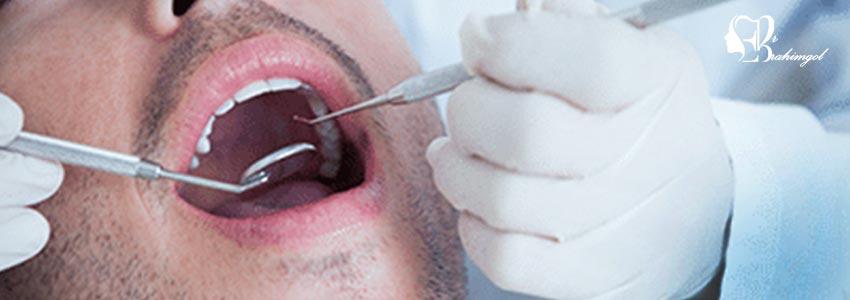 جراحی لثه با لیزر و هزینه آن و بیماری های لثه چیست؟ -