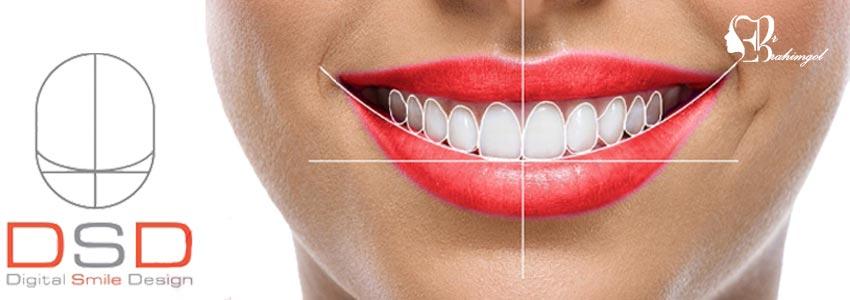 لمینت دندان ،قیمت لمینت دندان چیست و انواع لمینت کامپوزیت و سرامیک؟  - مزیتهای لمینت کامپوزیتی چیست؟