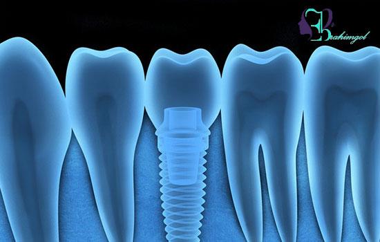 مزایای ایمپلنت نسبت به روش های دیگر جایگزینی دندان ها