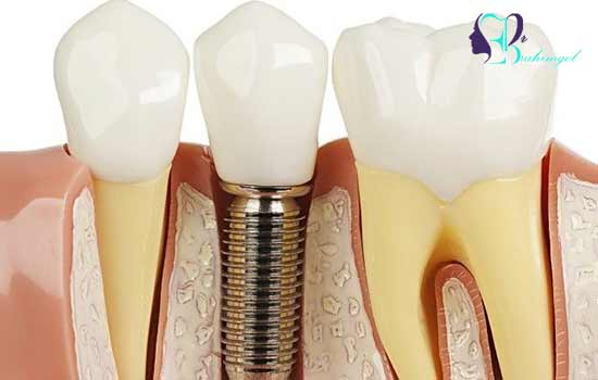 Why should we use dental implants?