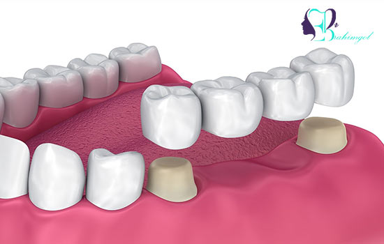 What is a bridge made of zirconia and what are its benefits?