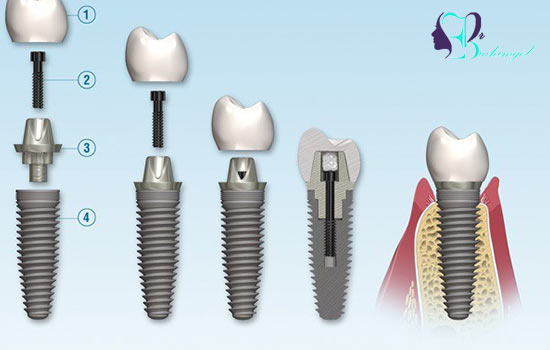 Familiarity with different parts of dental implants
