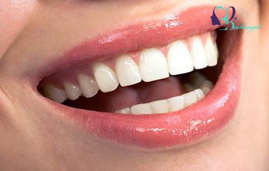 زیباتر کردن دندان ها و لبخند با جراحی کانتورینگ لثه