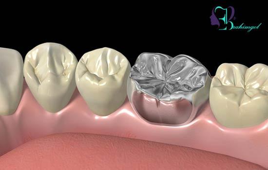 آلرژی به فلز در دندانپزشکی