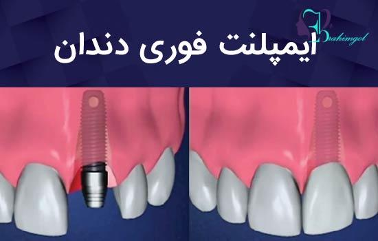ایمپلنت فوری دندان | مزایای کاشت دندان فوری – قیمت ایمپلنت فوری