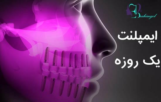 ایمپلنت یک روزه | کاشت دندان در یک روز - تحویل فوری روکش