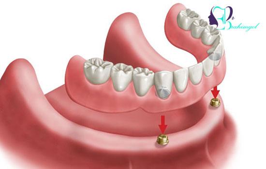 عوارض احتمالی دندان مصنوعی بر پایه ایمپلنت