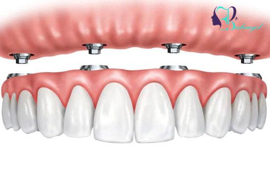 مزیت های دندان مصنوعی بر پایه ایمپلنت