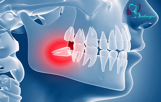 Wisdom tooth occlusion