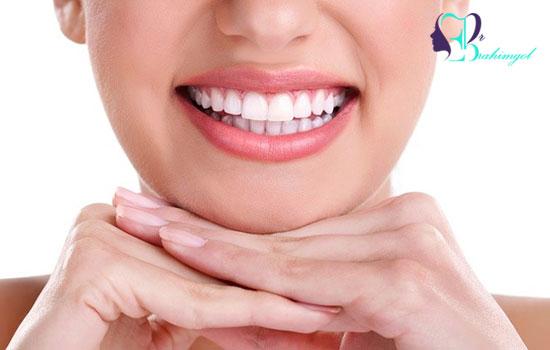 سفید کردن دندان ها با بلیچینگ