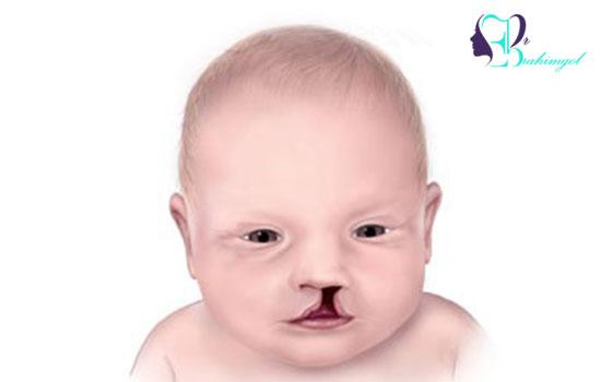 درمان شکاف لب و کام در کودکان
