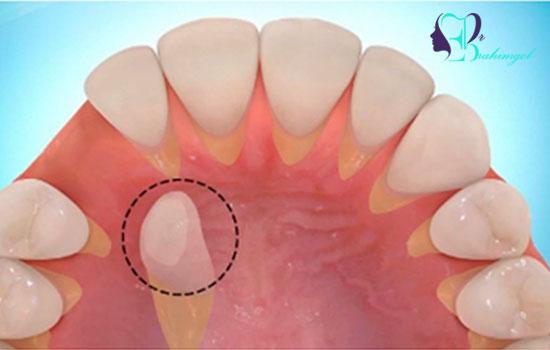 عمل جراحی دندان نهفته