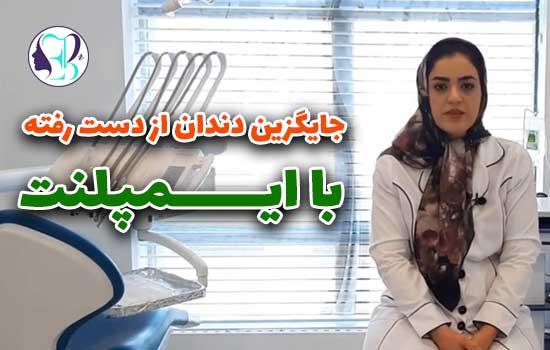 توضیحات دکتر ابراهیم گل درباره ایمپلنت برای جایگزینی دندان از دست رفته